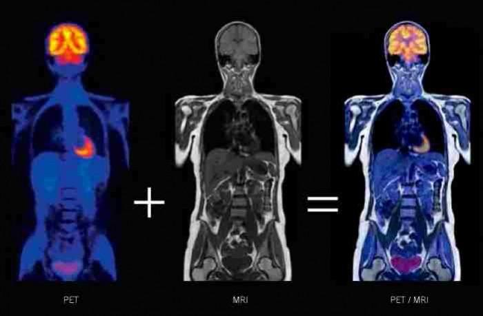 Ένα καινοτόμο μαγνητικό υλικό στην ιατρική